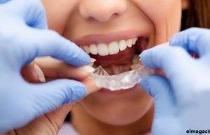 Consejos para ir al dentista durante el periodo de desescalada