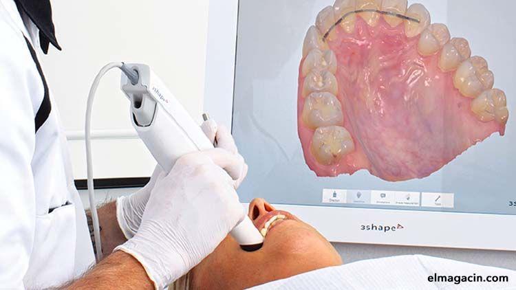 Digitalización de los implantes dentales. El Magacín.