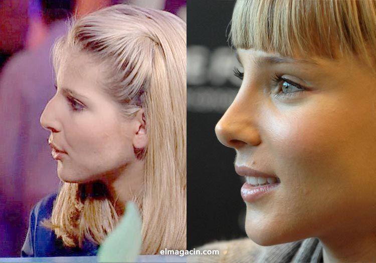 Comparativa de la nariz de Elsa Pataky antes y después de la operación. El Magacín.