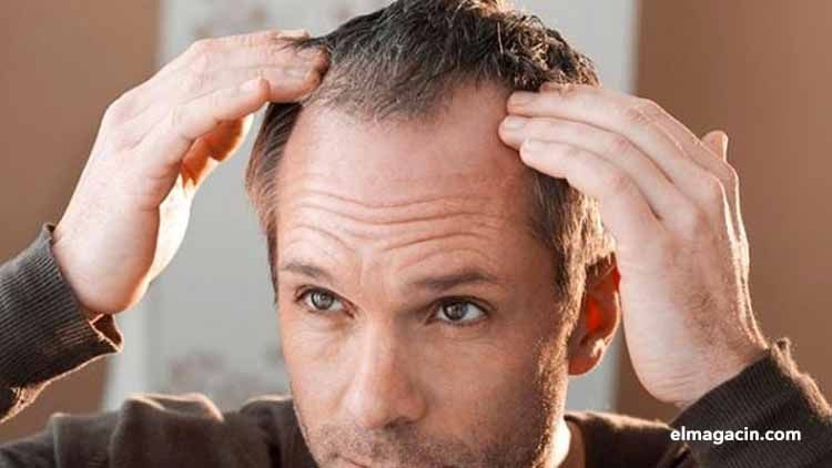 Implantación de pelo. El Magacín.