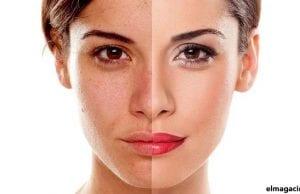 Por qué envejece la piel y cómo evitarlo.