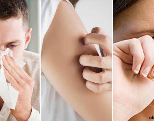 Los estornudos, la urticaria y los picores en los ojos son síntomas comunes entre distintos tipos de alergias