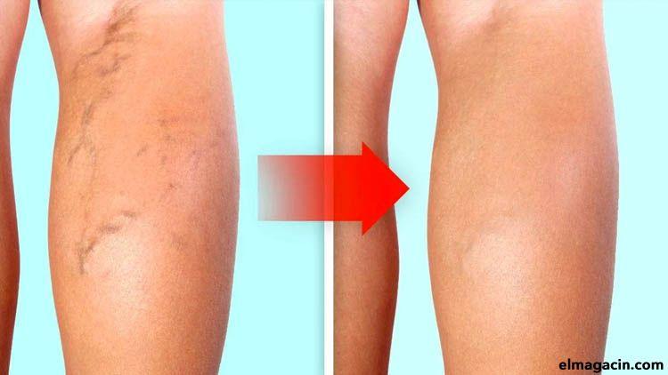 Cómo aliviar el dolor de las varices en las piernas